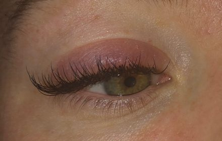Allergic reaction to lash extensions